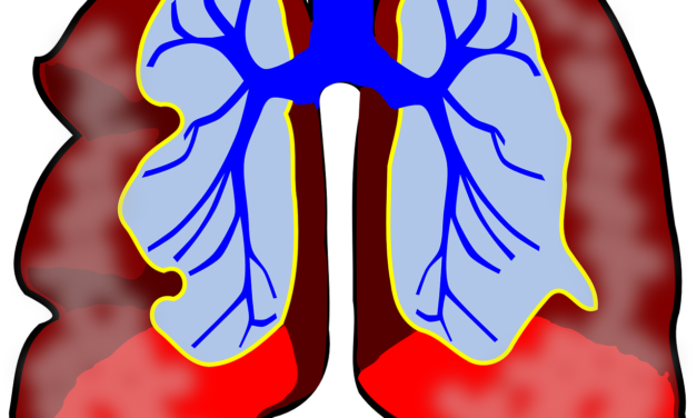 What Is Broncho Pulmonary Dysplasia?