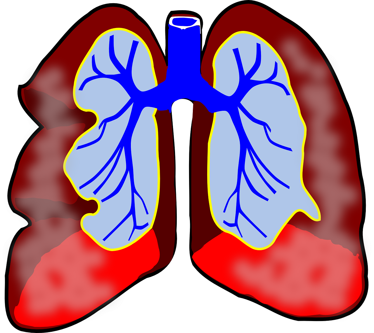 What Is Broncho Pulmonary Dysplasia?