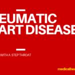 Rheumatic Heart Disease : It All Begin With Step Throat
